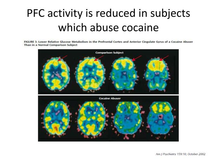 PFC activity is reduced in subjects which abuse cocaine