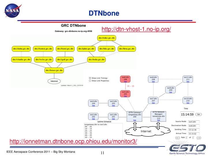DTNbone