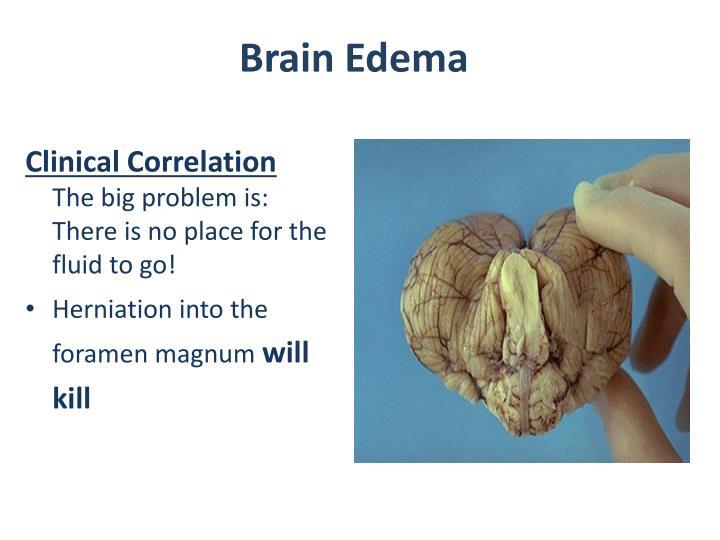 Brain Edema