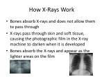 how x rays work