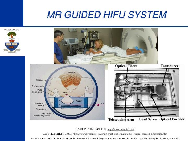 MR GUIDED HIFU SYSTEM