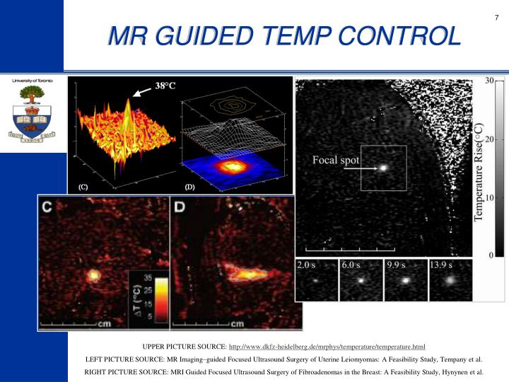 MR GUIDED TEMP CONTROL