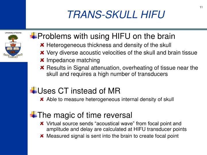 TRANS-SKULL HIFU