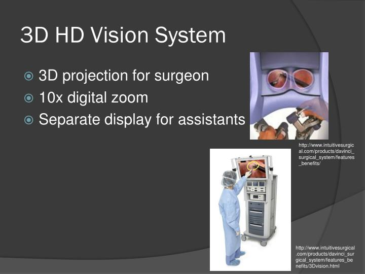 3D HD Vision System