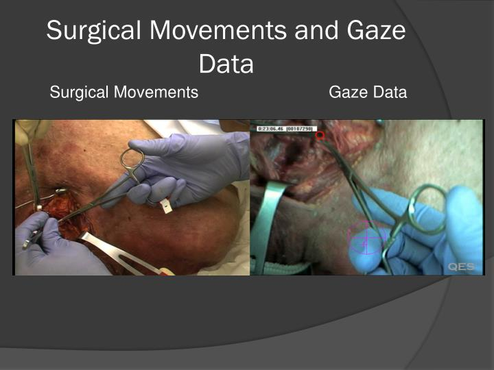 Surgical Movements and Gaze Data