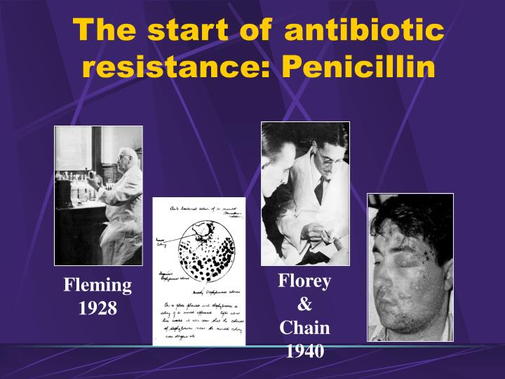 The start of antibiotic resistance: Penicillin