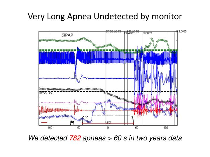 Very Long Apnea Undetected by monitor