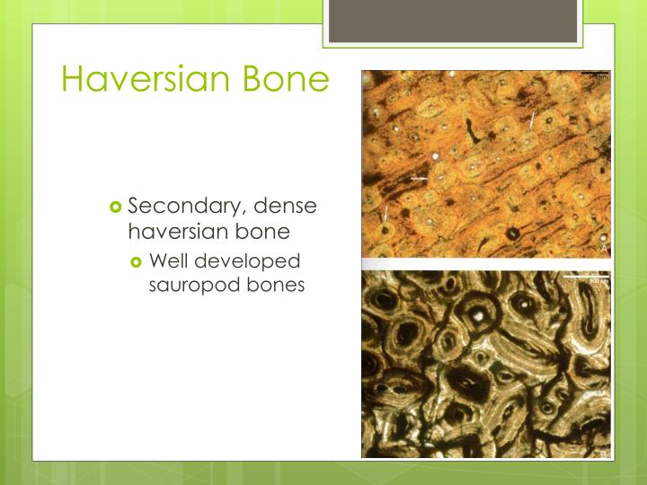 Haversian Bone
