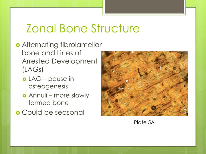 Zonal Bone Structure
