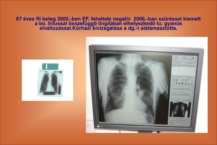 67 ves ffi beteg 2005.-ben EF. felvtele negatv  2006.-ban szrssel kiemelt a bo. hilussal sszefgg lingilban elhelyezked tu. gyans elvltozssal.Krhzi kivizsglsa a dg.-t altmasztotta.