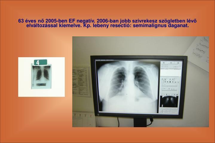 63 ves n 2005-ben EF negatv. 2006-ban jobb szvrekesz szgletben lv elvltozssal kiemelve. Kp. lebeny resecti: semimalignus daganat.