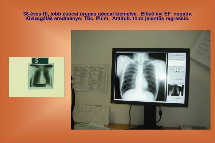 38 ves ffi, jobb cscsi reges gccal kiemelve.  Elz vi EF  negatv. Kivizsgls eredmnye: Tbc. Pulm.  Antitub. th.ra jelents regressi.