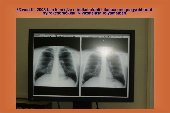 33ves ffi. 2008-ban kiemelve mindkt oldali hilusban megnagyobbodott nyirokcsomkkal. Kivizsglsa folyamatban.
