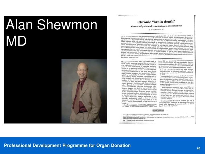 Alan Shewmon MD