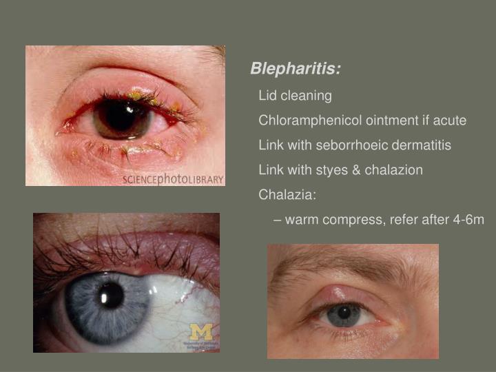 Blepharitis: