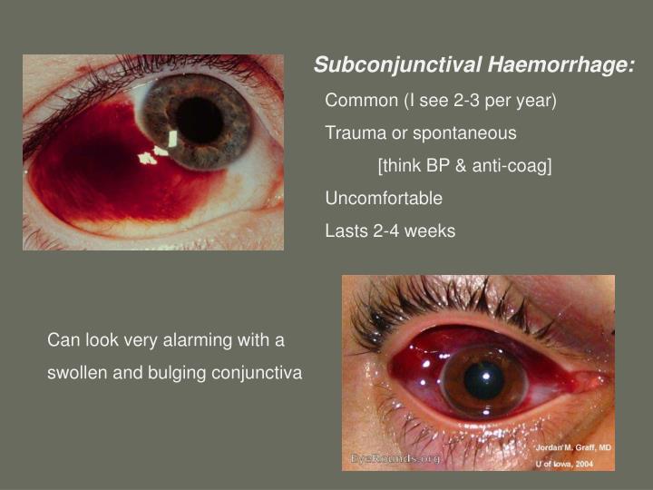 Subconjunctival