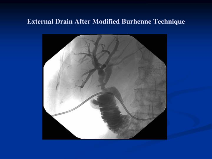 External Drain After Modified Burhenne Technique