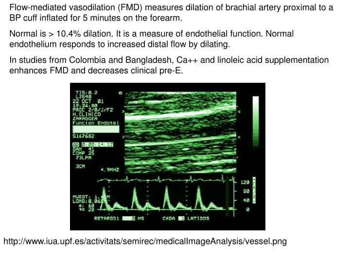 Flow-mediated vasodilation (FMD) measures dilation of brachial artery proximal to a BP cuff inflated for 5 minutes on the forearm.