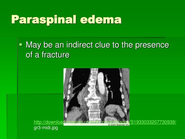 Paraspinal edema
