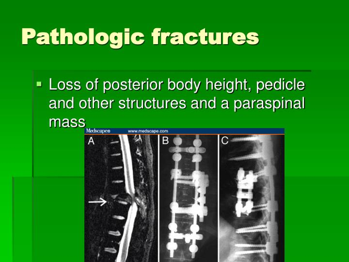 Pathologic fractures