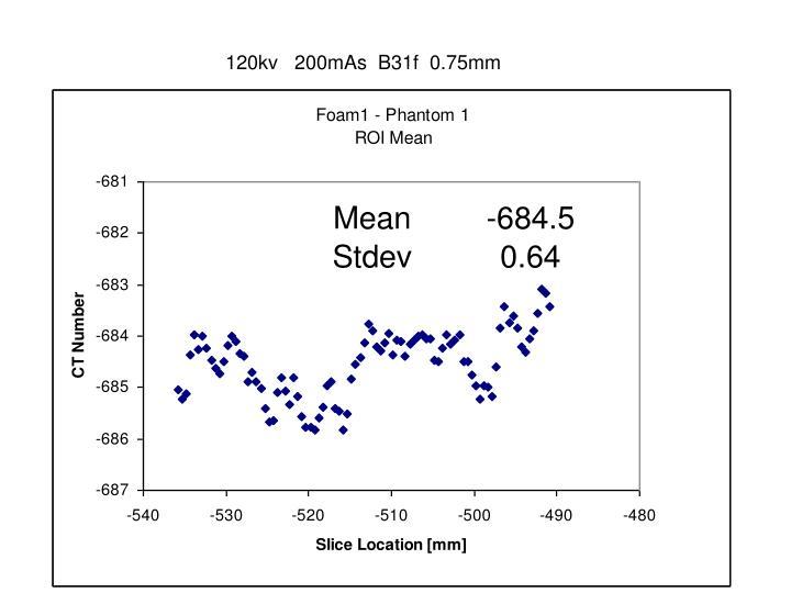 120kv   200mAs  B31f  0.75mm
