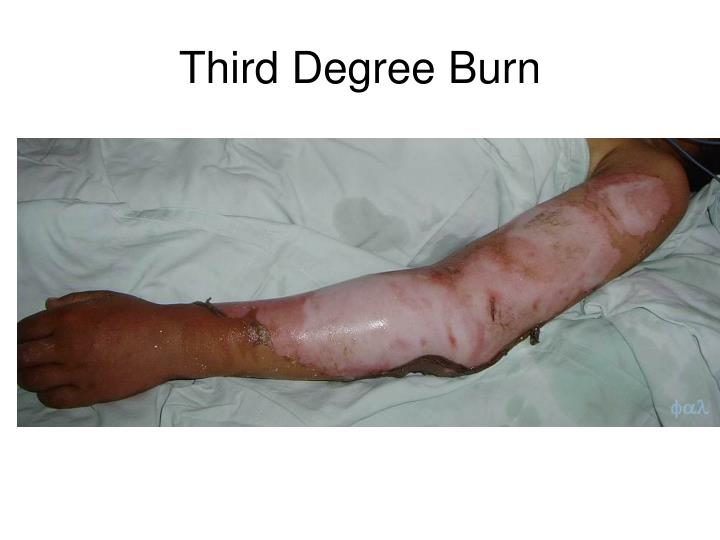 Third Degree Burn