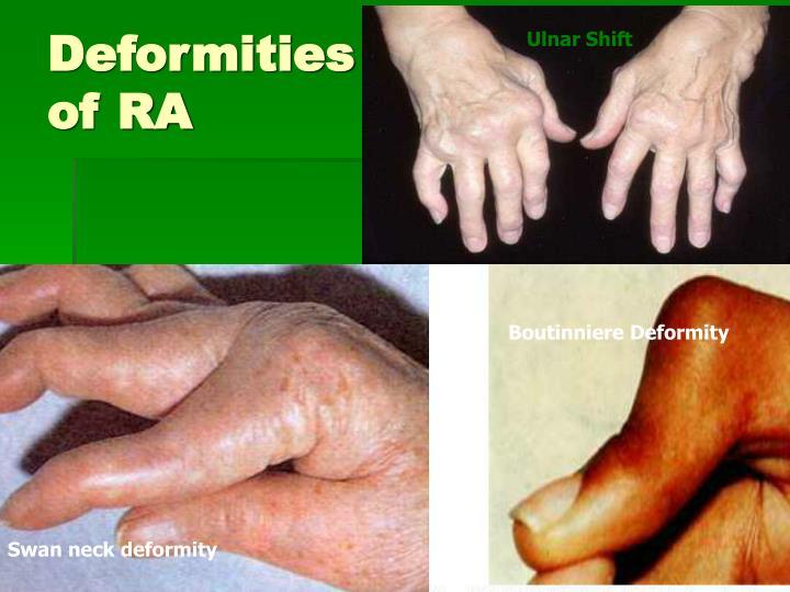 Deformities