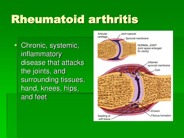 Chronic, systemic, inflammatory disease that attacks the joints, and surrounding tissues, hand, knees, hips, and feet