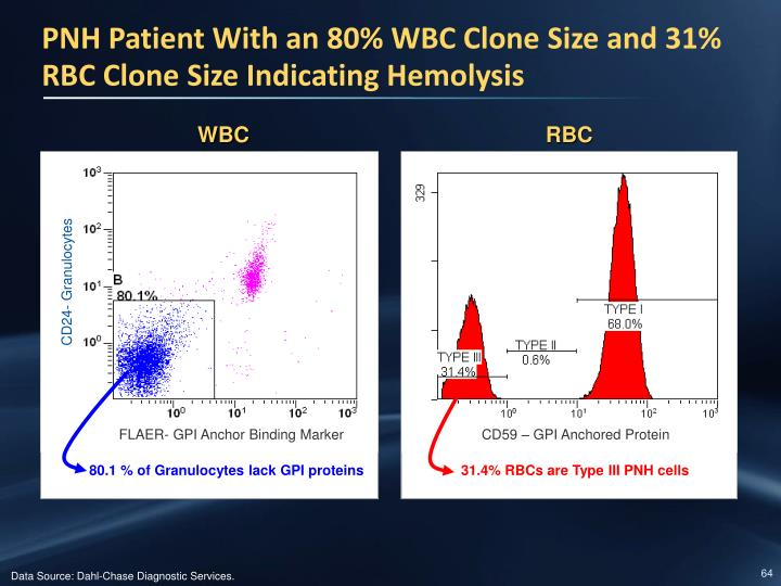 PNH Patient With an 80% WBC Clone Size and 31% RBC Clone Size Indicating Hemolysis
