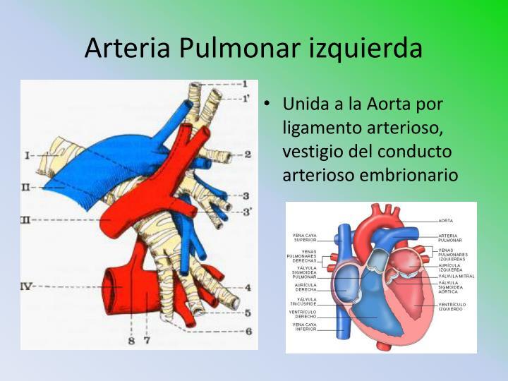 Arteria Pulmonar izquierda