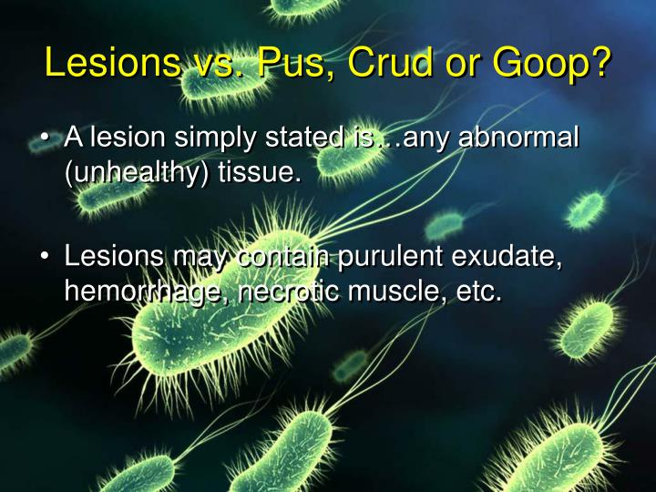 Lesions vs. Pus, Crud or Goop?