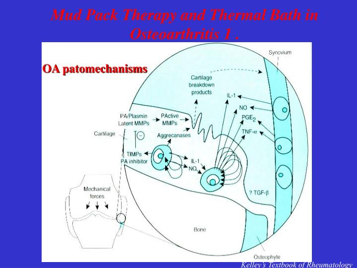 Mud Pack Therapy and Thermal Bath in Osteoarthritis 1 .