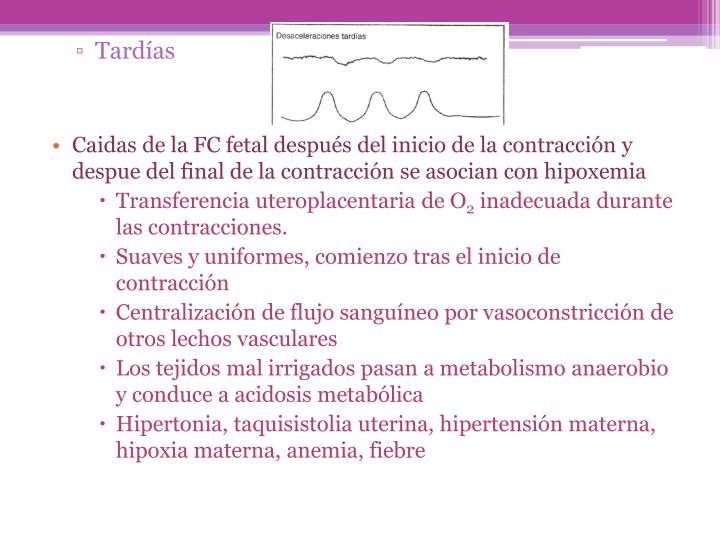 Tardías