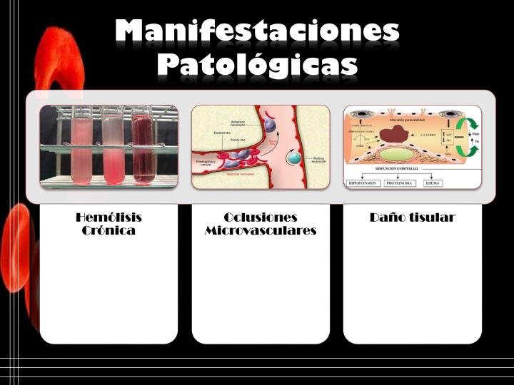 Manifestaciones Patológicas