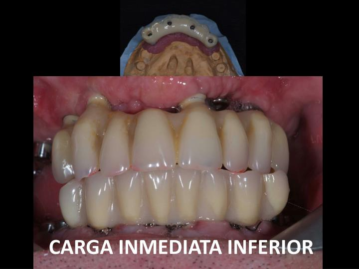 CARGA INMEDIATA INFERIOR