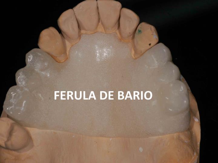 FERULA DE BARIO