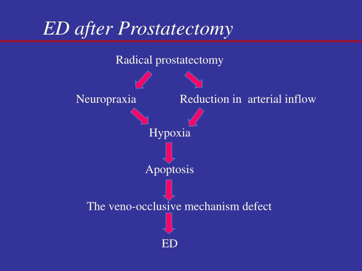 ED after Prostatectomy