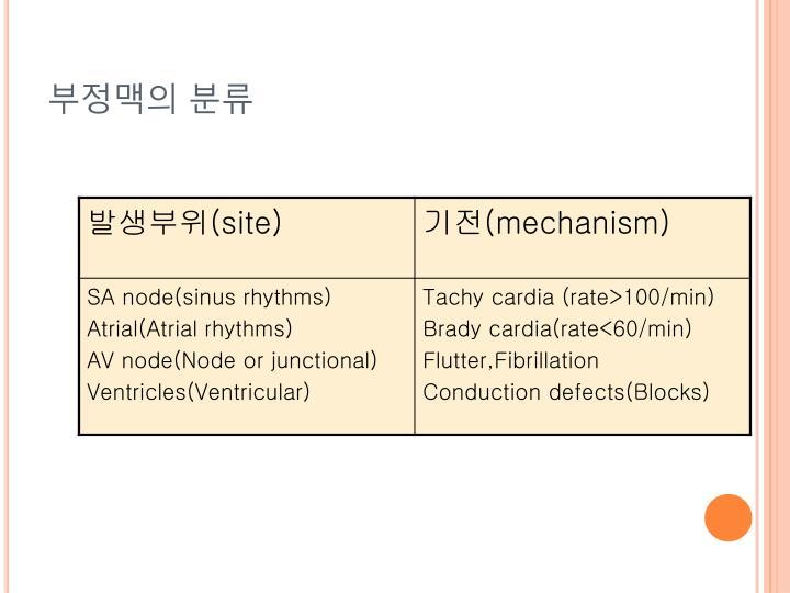 부정맥의 분류