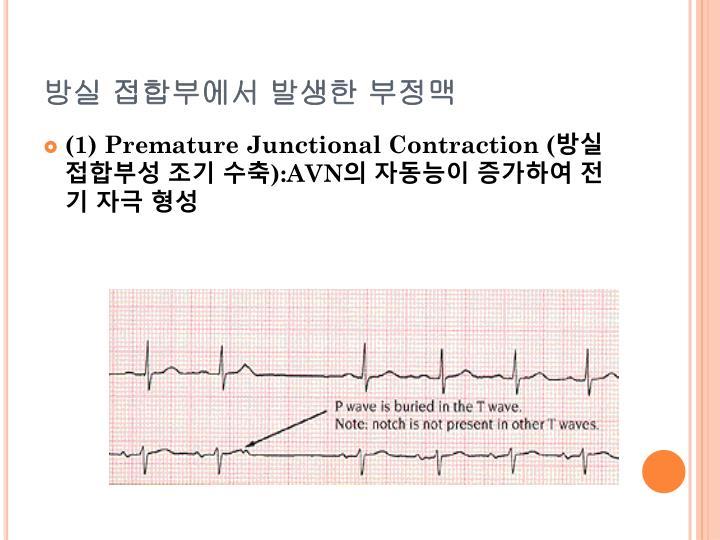 방실 접합부에서 발생한 부정맥
