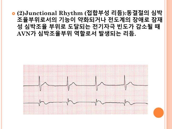 (2)Junctional Rhythm (