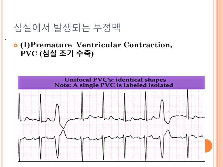 심실에서 발생되는 부정맥