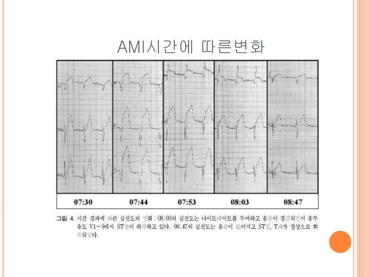 심근경색의 시간에 따른 심전도의 변화