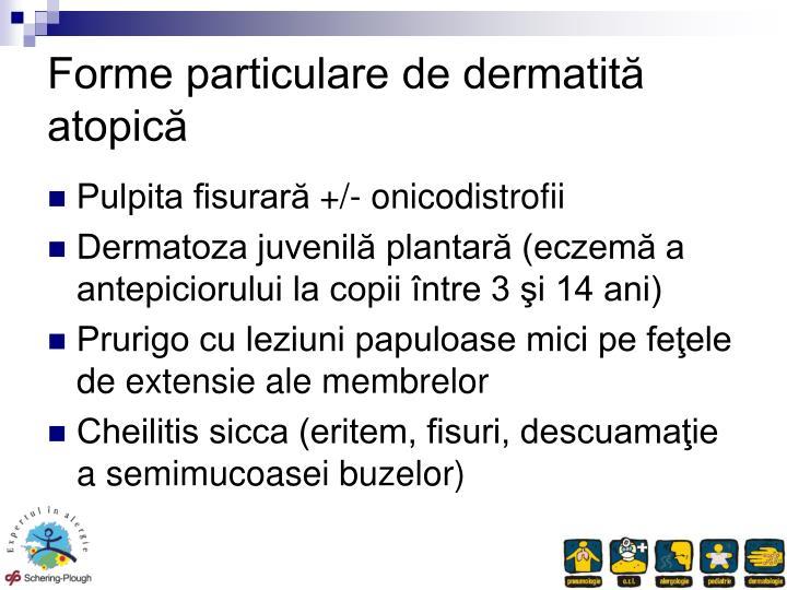 Forme particulare de dermatită atopică