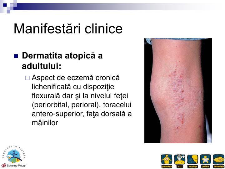 Manifestări clinice