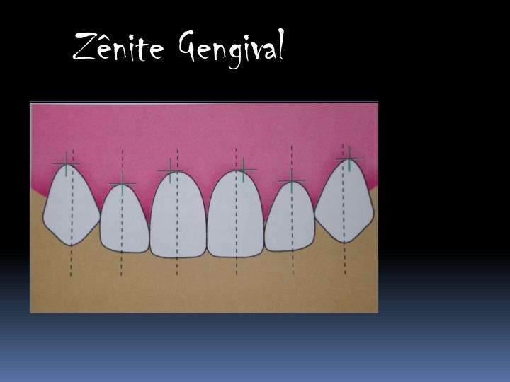 Zênite Gengival