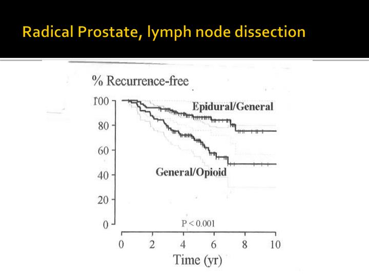 Radical Prostate, lymph node dissection