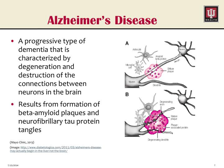 health essays alzheimer dementia disease essay Free research proposal paper on alzheimer's disease 2013 writer research papers 0 the two types of dementia are often overlapped alzheimer's disease is.
