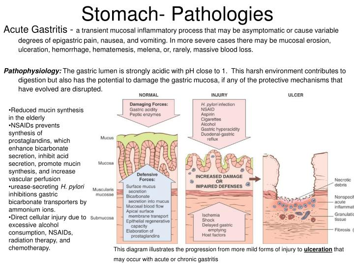 Stomach- Pathologies