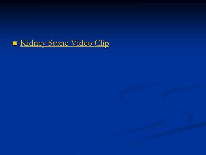 Kidney Stone Video Clip