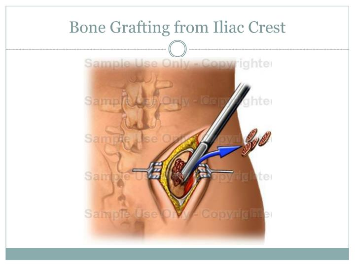 The History of Bone Grafting
